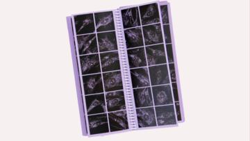 Denzer book - skin cells